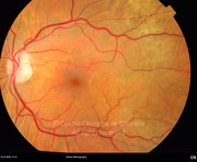 Fundus photograph, 3 weeks after surgery. Visual acuity was 20/20 OU