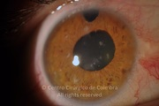 Right eye. Glaucoma.VA: NLP