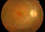 Fundus photograph in a 23-years-old male patient with Bardet-Biedl syndrome. His parents are cosanguineous and he has a homozygous mutation in the BBS1 gene