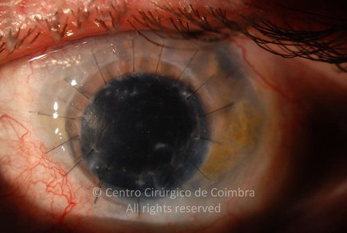 Corneal Autotransplant - Clinical Case 01