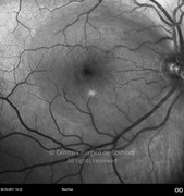 Macular hole red-free 1 week after macular hole surgery
