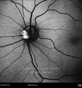 Autofluorescence photograph showing optic disc drusen at left eye. These hyaline bodies are highly autofluorescent