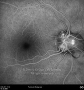 Fluorescein angiogram at late phase showing no macular edema