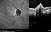 OCT horizontal line-scan shows elevation of the optic disc