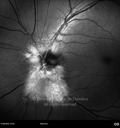 Red-free photograph of myelinated fibers (bright white) at optic disc with extension along arcades, in a 52-years-old male patient. Posterior pole is not myelinated. Visual acuity was 20/25 RE and 20/20 LE