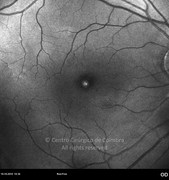 Red-free photograph in same case. The asteroid hyalosis bodies do not prevent a good visualization of the details of the fundus
