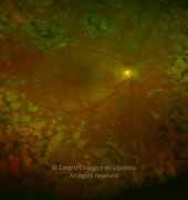 Central ultra-widefield photograph (magnification) of the right eye showing laser treatment in diabetic retinopathy. HbA1c test was 7.9%