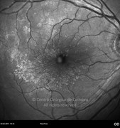 Red-free photograph 70 days after surgery showing secondary epiretinal membrane