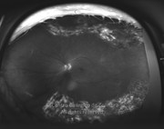 Ultra-widefield fundus photograph with greenseparation view shows that areas of proliferation were not enought to detach the retina