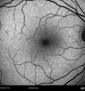 Autofluorescence photograph 2 months after epiretinal membrane removal