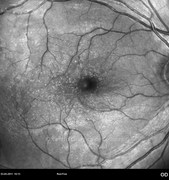 Red-free photograph 2 months after epiretinal membrane removal in same case