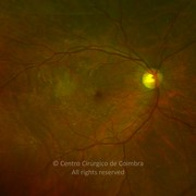 Fundus ultra-widefield photograph (magnification) 70 days after surgery highlighting the growth of the epiretinal membrane. Visual acuity: 20/20 RE