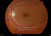 Fundus photograph 2 months after vitrectomy