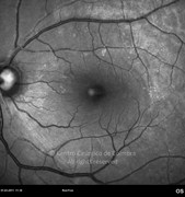 Red-free photograph 2 months after surgery shows the appearance of an epiretinal membrane at the superior temporal arcade