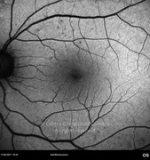 4,5 months after vitreoretinal surgery. Visual acuity. 20/25 LE