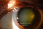 Anterior segment photograph after pupil dilation, in a 61-year-old male patient