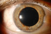 Anterior segment photograph of right eye 4 days after intraocular bevacizumab injection