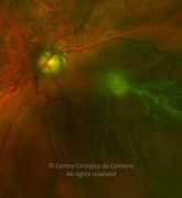 Ultra-widefield photograph (magnification) of rhegmatogenous retinal detachment in a 79-year-old patient. Visual acuity was < 20/400 LE and 20/25 RE. Pseudophakic