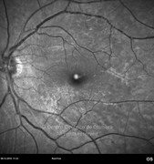 Red-free photograph 2 months after surgery showing an epiretinal membrane