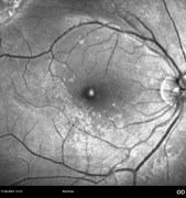 Red-free photograph showing an epiretinal membrane
