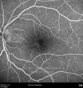 Fluorescein angiogram at late phase showing discrete leakage at the temporal border of the optic disc as well as in the infero-nasal foveal area