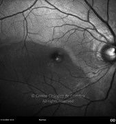 Red-free photograph showing that retinal detachment extends to the macular area