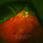 Ultra-widefield photograph (magnification) through keratoprosthesis showing rhegmatogenous retinal detachment