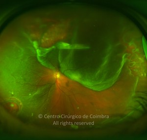 Rhegmatogenous Retinal Detachment