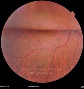 Fundus photograph, 3 weeks after vitreoretinal surgery