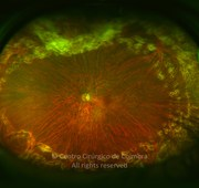 Ultra-widefield photograph 10 months after vitreoretinal surgery showing lasers scars around the retinal tears. Visual acuity was 20/28 LE