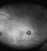 Ultra-widefield photograph of autofluorescence 16 months after the choroidal detachment