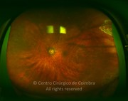 Ultra-widefield photograph, 3 months after surgery showing laser scars around the retinal tear. Visual acuity was 20/25 LE