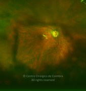 Ultra-widefield fundus photograph (magnification) before YAG laser capsulotomy