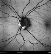 Autofluorescence photograph showing optic disc drusen at left eye