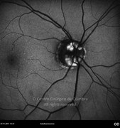 Autofluorescence photograph showing optic disc drusen at right eye