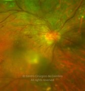 Ultra-widefield photograph magnification demonstrating the proliferative diabetic retinopathy