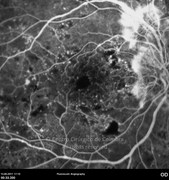 Fluorescein angiogram at early phase showing neovascularization and some ischemic areas