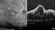OCT vertical line-scan showing severe cystoid macular edema