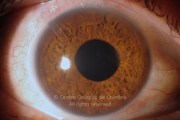 Anterior segment photograph of right eye, 17 days after Ahmed valve implantation