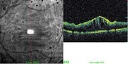 OCT line scan showing cystoid macular edema