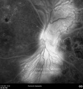 Fluorescein angiogram at mid-phase showing leakage from neovascularization at the optic disc