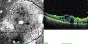 OCT line-scan 1 day after surgery showing cystoid macular edema