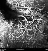 Fluorescein angiogram, early phase shows retinal neovascularization