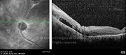 OCT  line-scan showing a retinal detachment around the optic disc