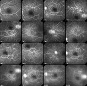 Fluorescein angiogram of proliferative diabetic retinopathy in same case