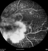 Fluorescein angiogram, mid-phase, showing extensive retinal leakage