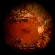 Fundus photograph of proliferative diabetic retinopathy after surgery. Visual acuity: 20/20 RE