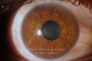 Anterior segment photograph of right eye. Neovascular Glaucoma. IOP=51 mmHg. Visual acuity: 20/200 OU