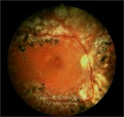 Fundus photograph of proliferative diabetic retinopathy 1 month after surgery. Visual acuity: 20/20 RE