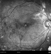 Note the epiretinal membrane (hiperreflective) adjacent to the optic disc on the superior temporal arcade
